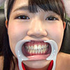 Health of pretty chicks this per-CHAN's observation of natural teeth and healthy!
